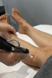 Revlite laser removing hair on womans leg
