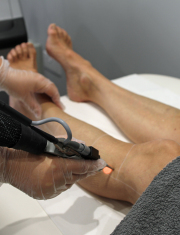 Complete List of Laser Hair Removal Contraindications