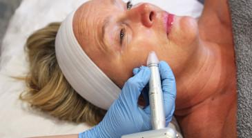 Nanopore|Micro-needling & Mesotherapy