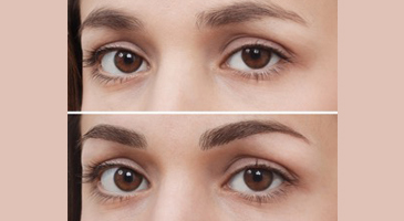 permanent-makeup-sure-aesthetics